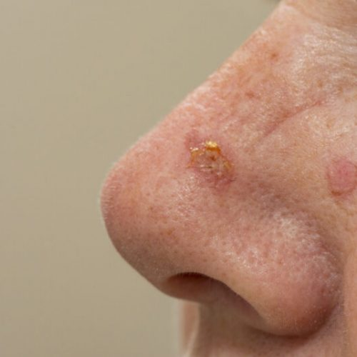 Sunspots,On,A,Nose,That,Have,Been,Treated,With,Cryosurgery