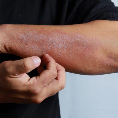 Close,Up,Dermatitis,On,Skin,,Ill,Allergic,Rash,Dermatitis,Eczema