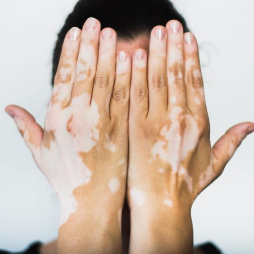 Vitiligo,On,The,Hands,With,White,Background