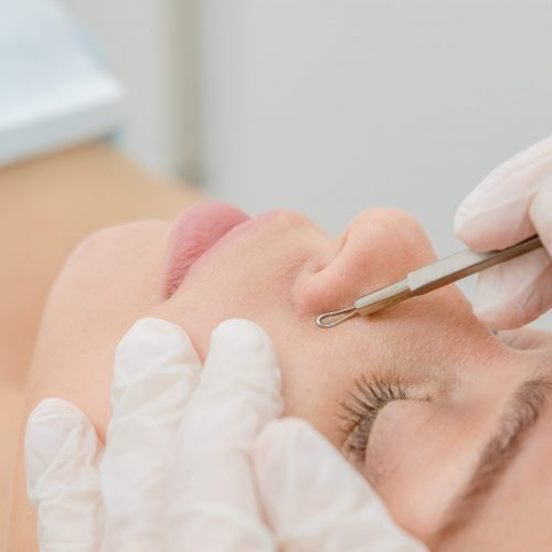 Procedure,For,Cleaning,Skin,With,Steel,Tool,From,Blackheads,And